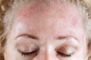 Mandelöl bei Neurodermitis